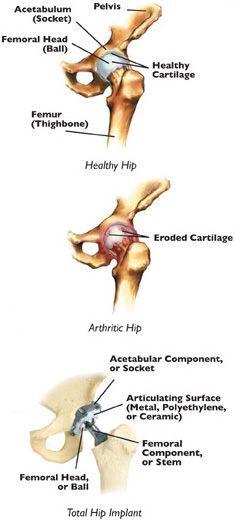 Osteoarthritis | Joint Pain Treatment Bethesda | Rheumatoid
