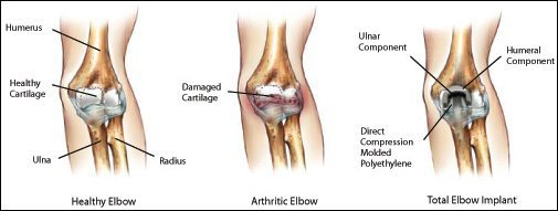 Arthritic Elbow Treatment, Rockville, Maryland