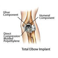 Surgical Elbow Treatment, Rockville, Maryland