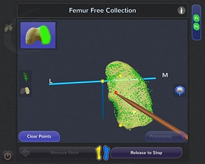 Femur Free Collection