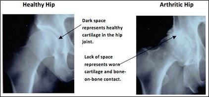 Total Hip Replacement, Rockville, Maryland