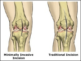 Minimally Invasive Total Knee Replacement, Rockville, Maryland