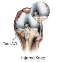 Anterior Cruciate Ligament (ACL) Tear, Rockville, Maryland