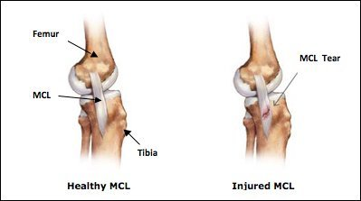 Medial Collateral Ligament (MCL) & Lateral Collateral Ligament (LCL) Tear, Rockville, Maryland