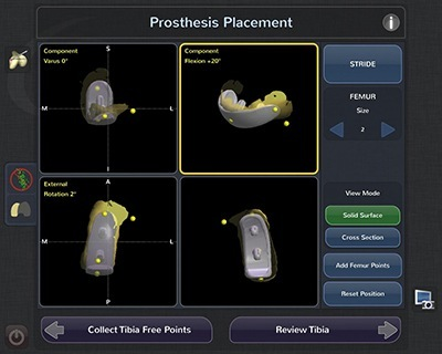 Prosthesis Placement