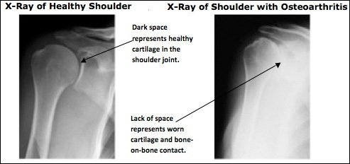 Diagnosing Shoulder Pain, Rockville, Maryland