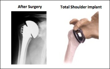 Shoulder Resurfacing, Rockville, Maryland