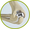 Surgical Elbow Treatment