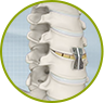 Surgical Spine Treatment