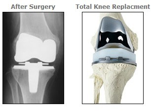 Total Knee Replacement Osteoarthritis Bethesda Knee